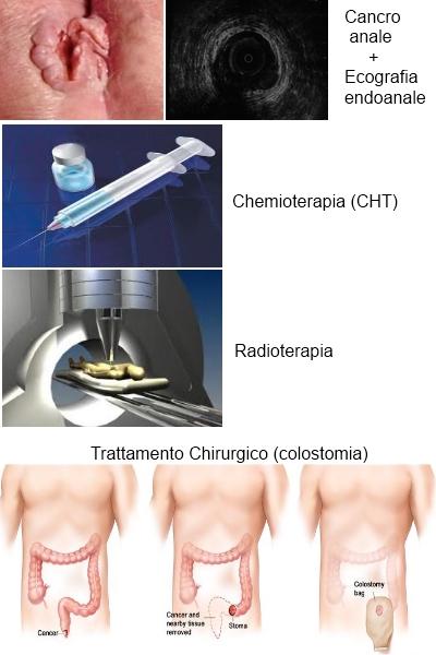 hpv e tumore all ano
