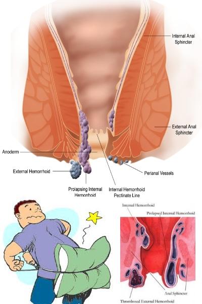 Prevenzione di emorroidi di unguento
