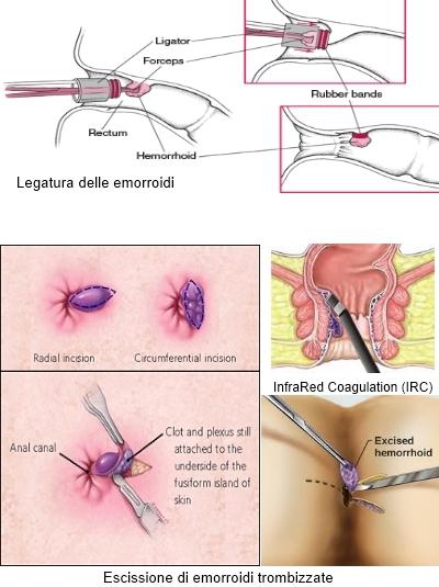 Se operazione difficile su eliminazione di unincrinatura anale