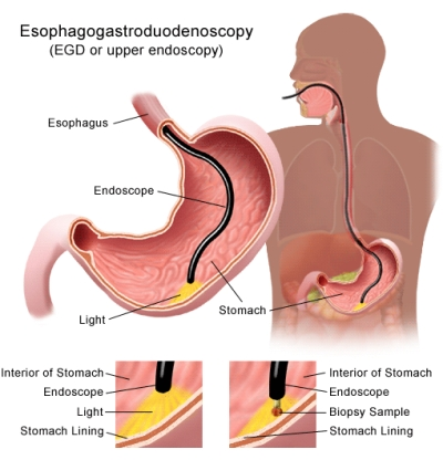 sintomi esofagite da reflusso gastroesofageo