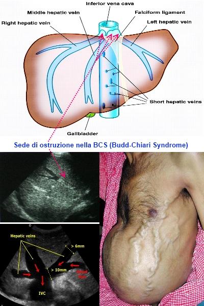 Come trattare il balsamo un asterisco varicosity
